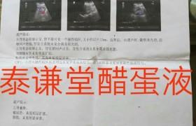 """廉海鹰:泰谦堂醋蛋归元液调好了我的""""多发性胆囊息肉、胆囊炎、肾囊肿""""!"""