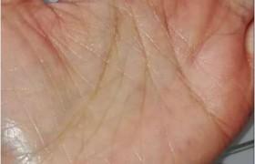 血管栓塞(血栓),如今手掌和脸都不红了!
