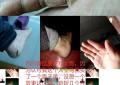 手足皲裂 案例(275)