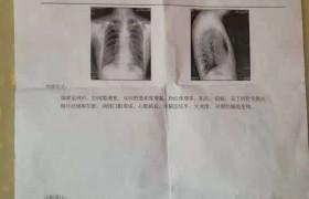 肺气肿调理案例(384)