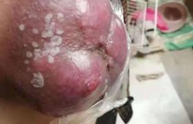 乳头癌 案例(347)